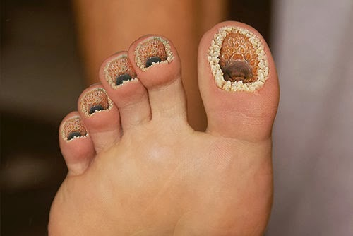 Do You Have Trypophobia Why So Many People Fear Holes Dnb